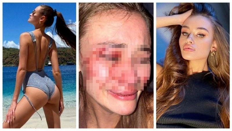 Топ моделът Дария Кирилюк жестоко пребита от охрана в турски бийч бар
