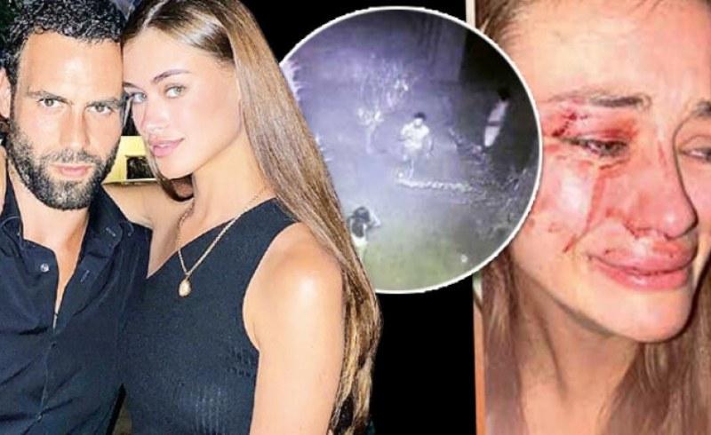 Нова версия: Топ моделът Дария Кирилюк била пребита от гаджето си в Чешме