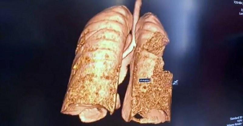 Пулмолог пусна снимка на белите дробове на 22-годишен пациент с коронавирус