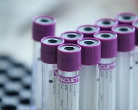 Учени с интересно откритие за имунитета на безсимптомни носители на COVID-19