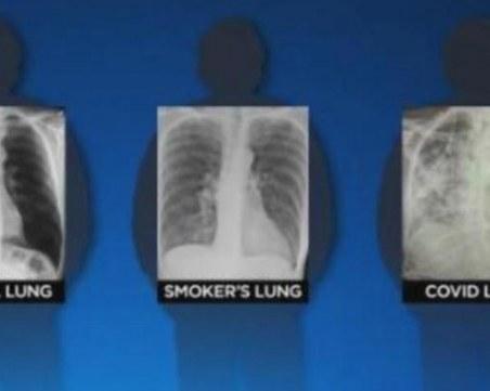 Белите дробове на хората, прекарали коронавирус, изглеждат по-зле от тези на пушачите