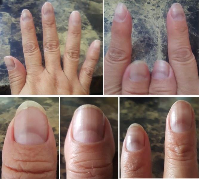 """COVID нокти"