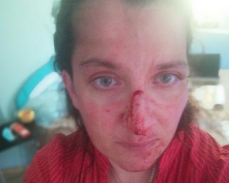 Психично болен преби сестра си в Бургас