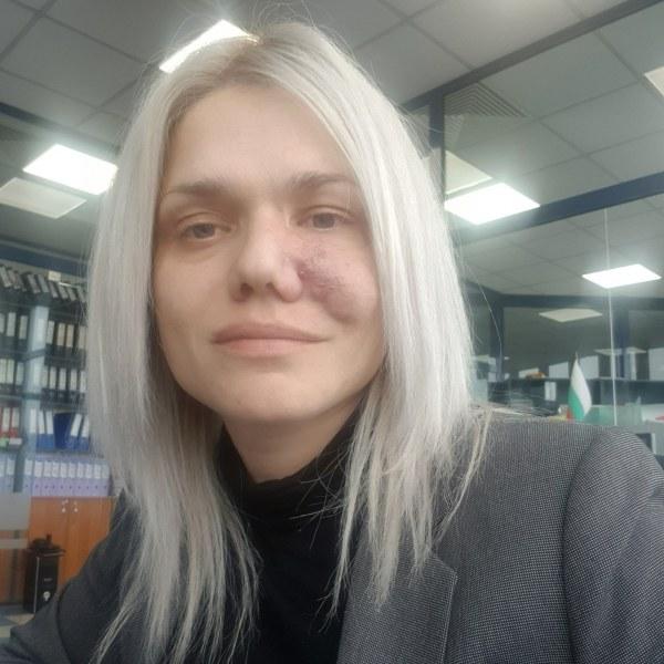 Жена от Пловдив се нуждае от помощ