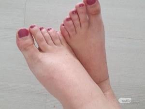 Какво казват краката за здравето ни
