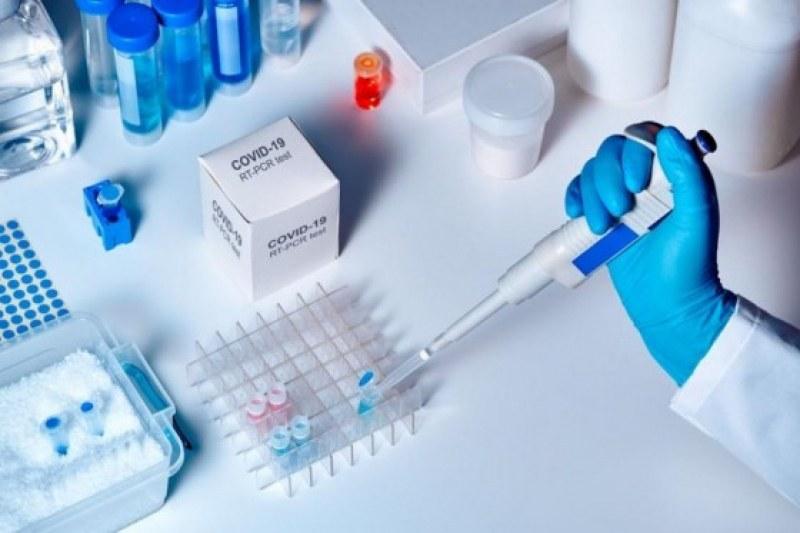От какво зависят нивата на антитела при боледувалите от COVID-19