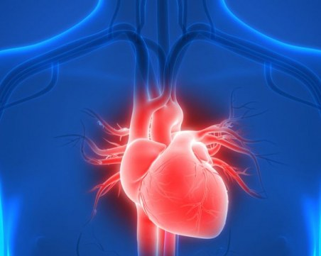 Първата трансплантация на изцяло изкуствено сърце беше извършена в Европа